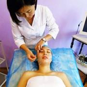 Лечение тройничного нерва в Алматы иглоукалыванием фото