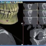 Отслеживание нервов, томограф компьютерный конусно-лучевой WhiteFox фото