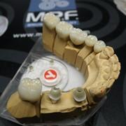 Изготовление зубных протезов для стоматологий фото