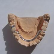 Бюгельный протез с кламмерами (включая слепки) фото