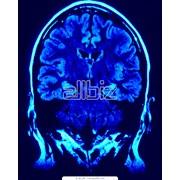Компьютерная томография головного мозга фото