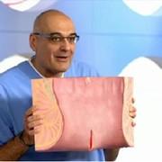 Лечение хронической анальной трещины фото