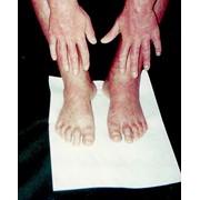 Лечение кожных болезней фото