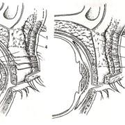 Лазерная коррекция ориентальных век, Блефаропластика фото