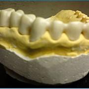 Изготовление каркасов из оксида циркония фото