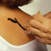 Иридодиагностика: лечение пиявками фото