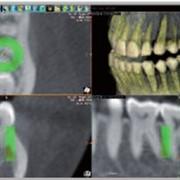 Контроль плотности кости, томограф компьютерный конусно-лучевой WhiteFox фото