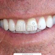 Протезирование зубов в Житомире фото
