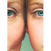 Хирургические услуги по подтяжке лица фото