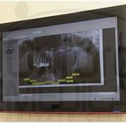 Рентгенография, Рентген стоматологический в Киеве, цена фото