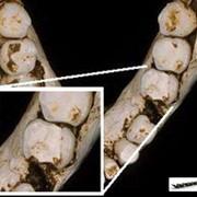 Лечение зубных каналов в Алматы фото