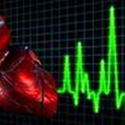 Лечение при инфаркте миокарда фото