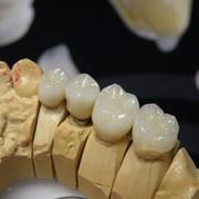Зуботехническое литье, Yamamoto фото