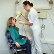 Рентгенография дентальная (прицельная) внутриротовая фото