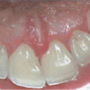 Профессиональная гигиена полости рта (профессиональная чистка зубов) фото