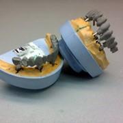 Металлокерамика на имплантатах фото