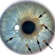 Иридодиагностика фото
