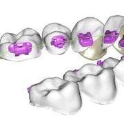 Лингвальные брекеты, Стоматологические услуги, Стоматология фото