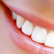 Удаление зубных отложений при помощи системы Air-Flow фото