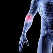 Магнитно-резонансная томография руки (плечевой, локтевой и лучезапястный суставы и кисть руки) фото