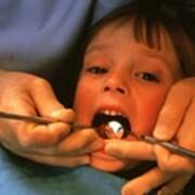 Серебрение зубов. фото