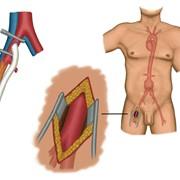 Сосудистая хирургия фото