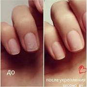 Восстановление ногтевой пластины фото