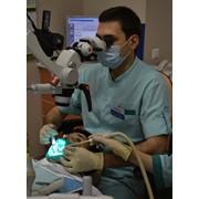 Эндодонтия или лечение корневых каналов фото