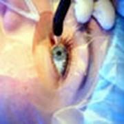 Лазерная хирургия глаза , амбулаторно-хирургический блок фото