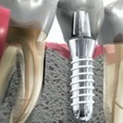 Хирургическая стоматология в Харькове фото
