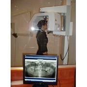 Панорамная цифровая рентгенография фото
