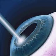 Контактная коррекция зрения, медицинские услуги фото