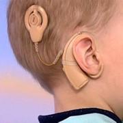 Слуховые импланты фото