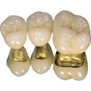 Протезирование зубов на основе металлокерамики   фото