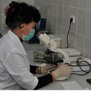 Лечение угревой болезни в санатории фото