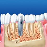 Имплантация зубов фото