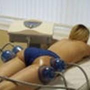 Вакуумный массаж. фото