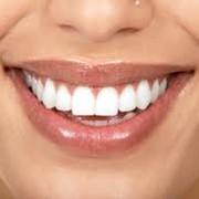 - бесплатная консультация и профилактический осмотр; - эксклюзивная, высокохудожественная реставрация зубов (изменение формы, цвета); - лечение и восстановление разрушенных зубов «приговоренных» к удалению; - протезирование зубного ряда протезами с при фото