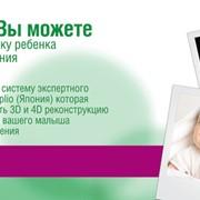 Ультразвуковая диагностика, Узи 3D – 4D в Украине, Цена, Фото фото
