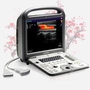 УЗИ аппарат SonoScape S6Pro фото