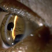 Лечение глаукомы фото