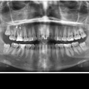 Панорамный снимок зубов – ортопантомограмм фото