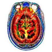 Диагностика и лечение ишемической болезни головного мозга фото