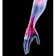 Спиральная компьютерная томография лучезапястного сустава и кисти фото