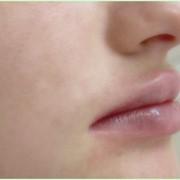 Коррекция губ фото