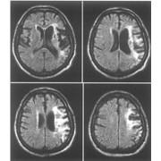 МРТ головного мозга фото