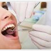 Пломбирование зубов фото