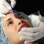 Ринопластика, коррекция формы носа фото