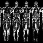 МАГНИТО-РЕЗОНАНСНАЯ ТОМОГРАФИЯ(мрт) МАГНИТО-РЕЗОНАНСНАЯ ТОМОГРАФИЯ(мрт) - томографический метод исследования внутренних органов и тканей с использованием физического явления ядерного магнитного резонанса — метод основан на измерении электромагнитного фото