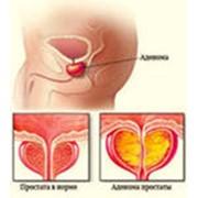 Лечение рака предстательной железы фото